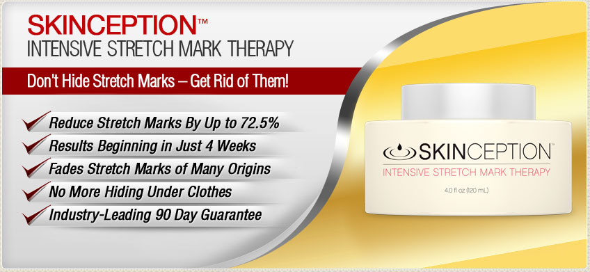 Skinception Intensive Stretch Mark Treatment